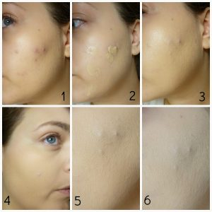 how-to-conceal-acne-900x900